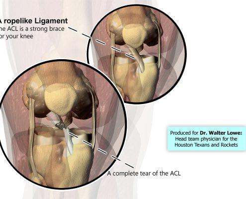 Dr. Walter Lowe - ACL tear