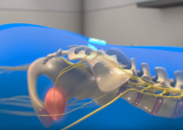 medical device animation