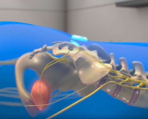 medical device animation