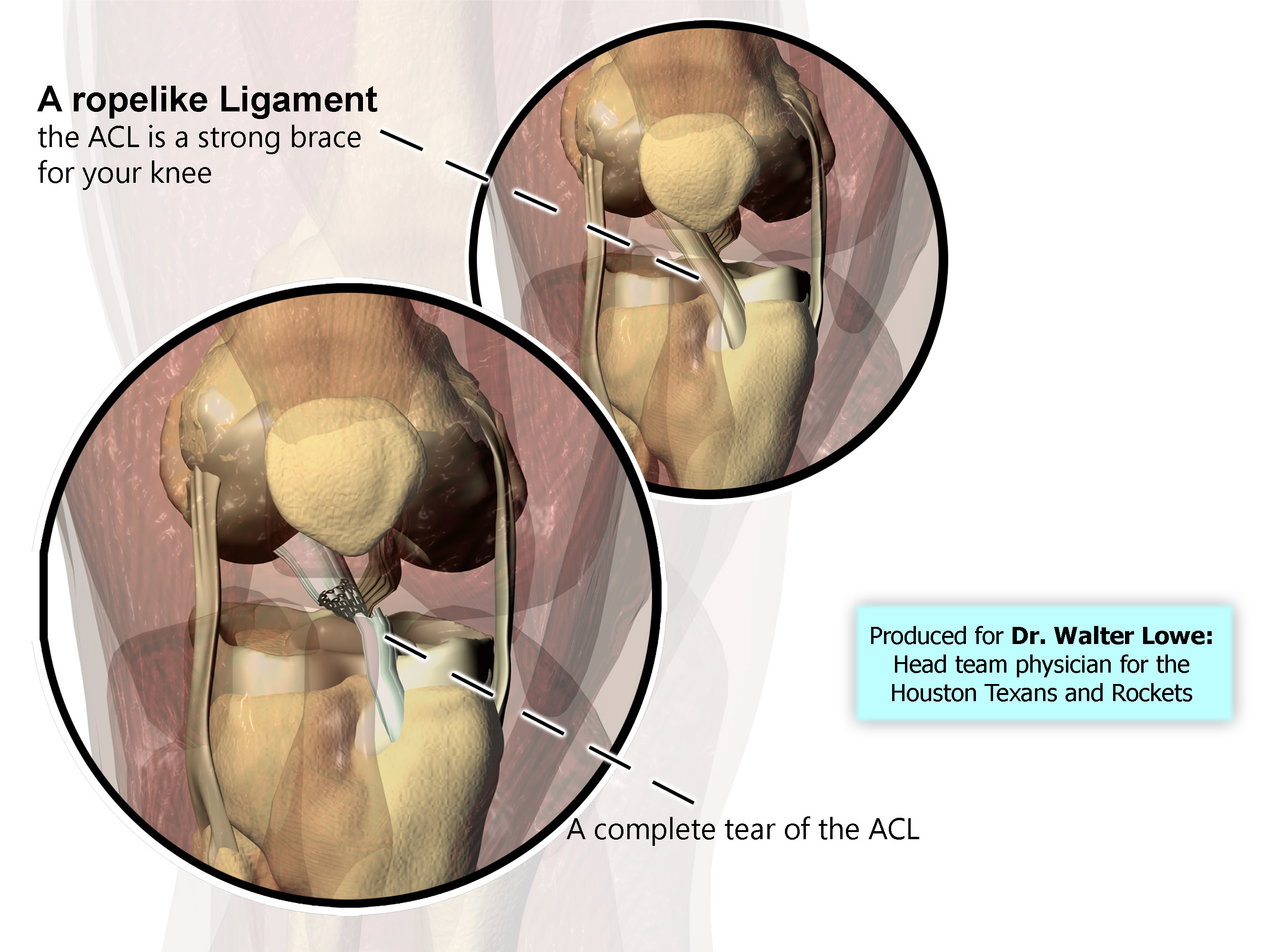 ACL Tear Illustration