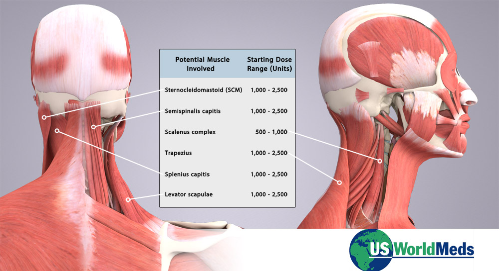 Muscle ID and Dosage Chart