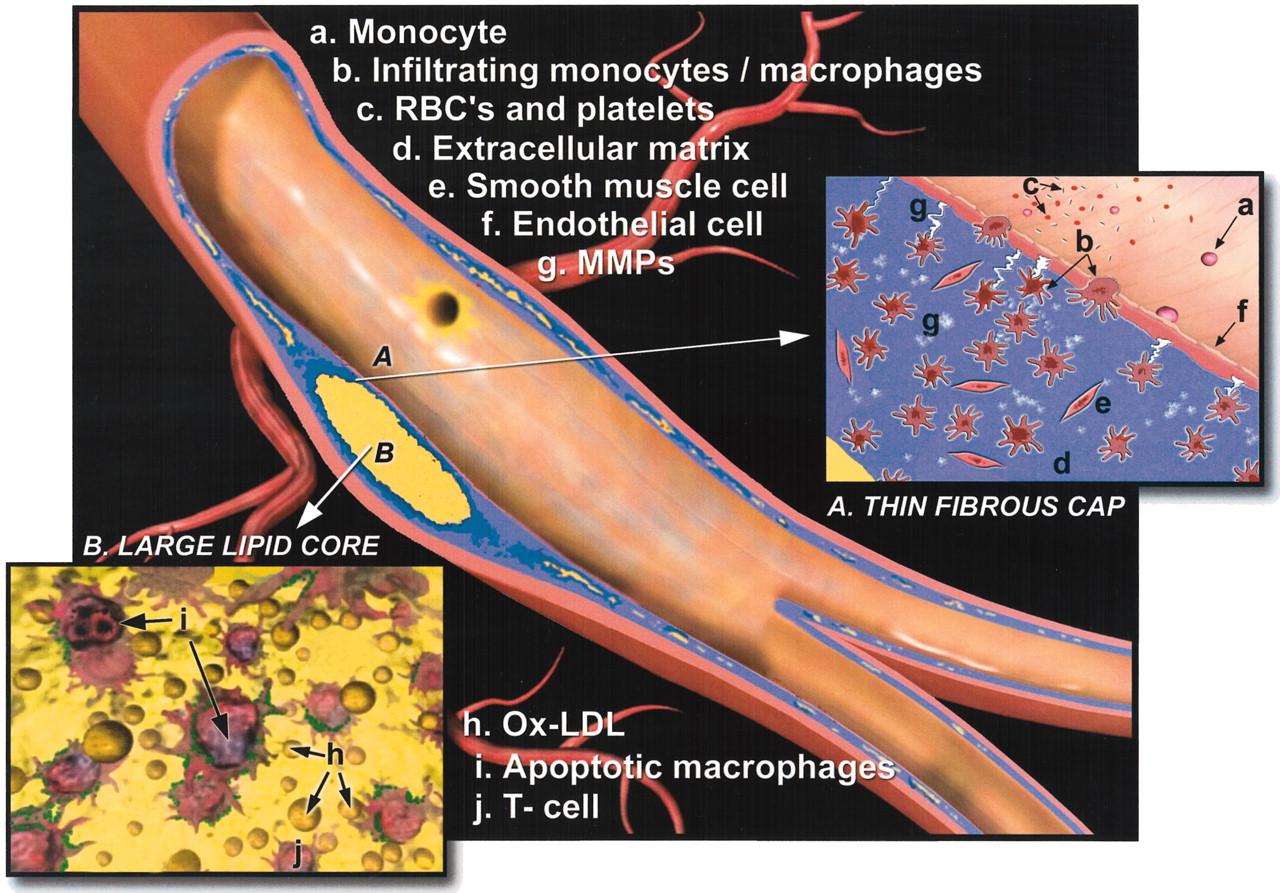 Anatomy of an Artery