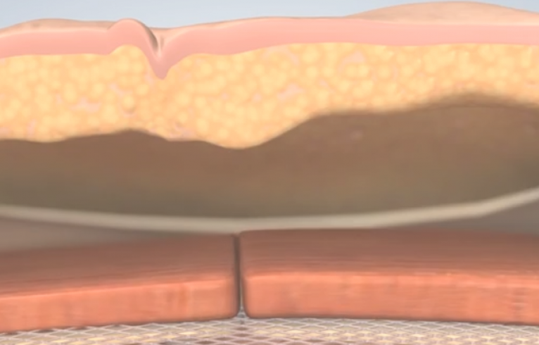 Ventral Hernia Procedure
