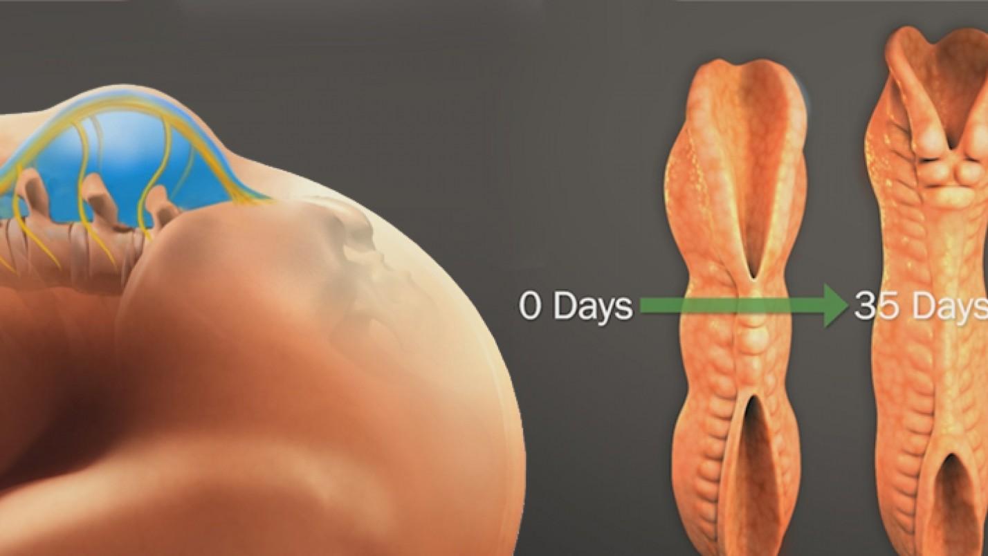 The Fetal Center – Spina Bifida Education